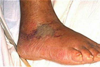 Vibrio infections. Early bullous lesions appear ov