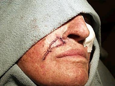 This patient had a defect on the right upper lip f