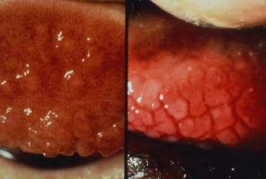The image on the left shows intense inflammatory t