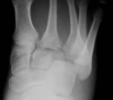 Standard anteroposterior radiograph demonstrates a