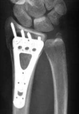 Distal radius fracture management in elderly patients a literature review