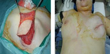 Latissimus dorsi breast reconstruction; flap inset