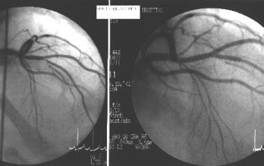 Cardiac catheterization and coronary angiography i