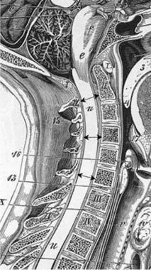 Sagittal measurements taken of the anteroposterior
