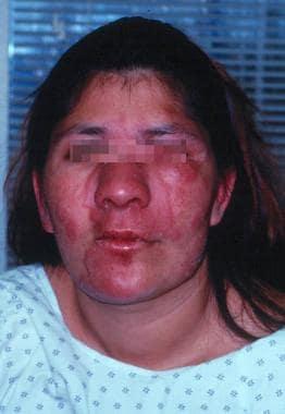 Leprosy Follow-up: Fur... Type 2 Lepra Reaction