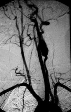 An arteriogram demonstrating aneurysmal degenerati