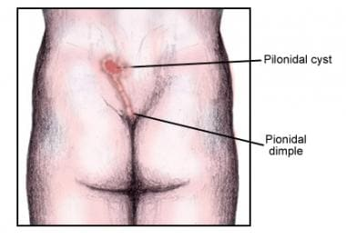 pilonidal cyst and sinus: background, pathophysiology, epidemiology, Skeleton