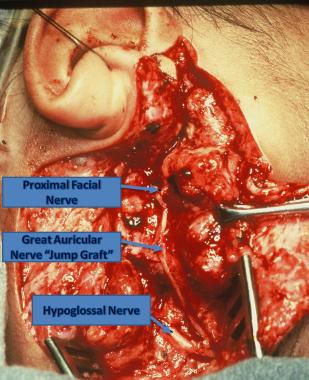 Fast hypoglossal facial nerve jump graft the POV angle