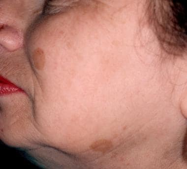 Solar lentigines before treatment with a pigmented