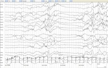 Burst suppression. An infant of 42 weeks' postconc