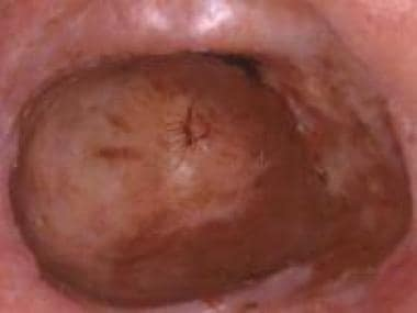 Invasive conjunctival melanoma. Courtesy of Peter