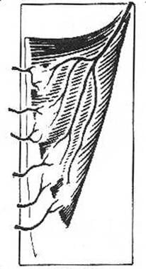 Type V, vascular patterns of the muscle and muscul