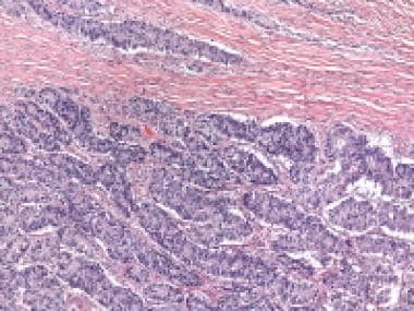 Sertoliform endometrioid carcinoma composed of com