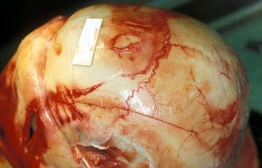 Linear fracture of the left frontal and parietal b