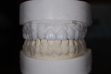 Wax teeth planning (wax up) for planned veneers.