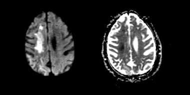 MRI was obtained to further clarify the findings o