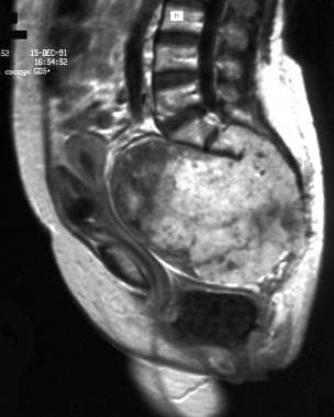 Sagittal contrast-enhanced T1-weighted magnetic re