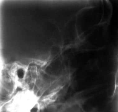 Tomogram through the left temporomandibular joint