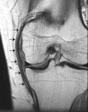 Grade II medial collateral ligament tear seen on a