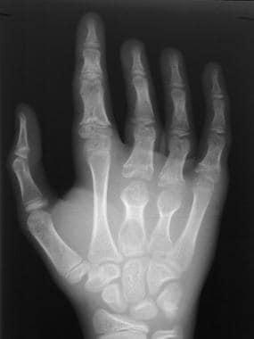 Skeletal sickle cell anemia. Bone deformity. Image