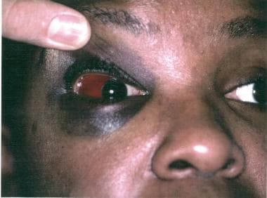 Lateral subconjunctival hemorrhage.
