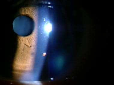 Corneal foreign body.