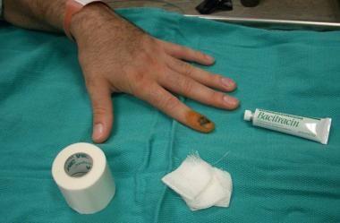 Positioning of finger.