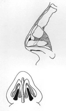 Nasal anatomy.