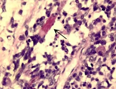 Embryonal rhabdomyosarcoma is evidenced by a varia