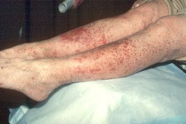 Vasculitic reaction on the legs.