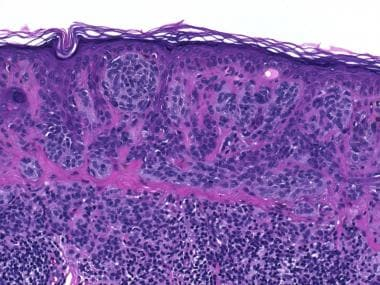 A conventional compound melanocytic nevus. Note th