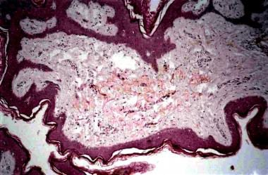 A hyperplastic epidermis showing papillomatosis, h