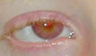 Photo showing light brown eyes and a red reflectio