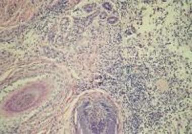 Histopathologic picture of biopsy taken from a whi