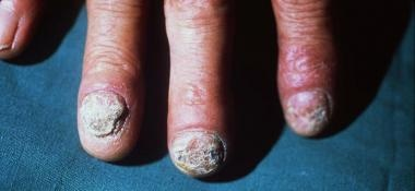 Thickened, fragmented, hyperkeratotic nails and er