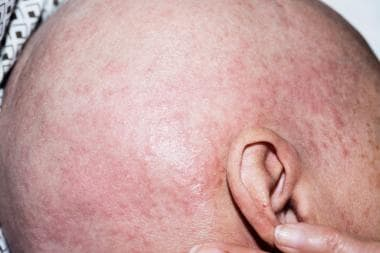 Diffuse macules and papules on the scalp of a pati