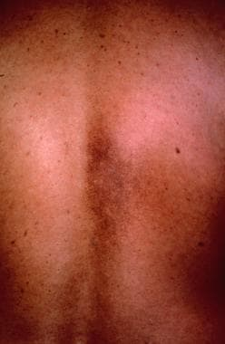Reddish brown patch on the back characteristic of