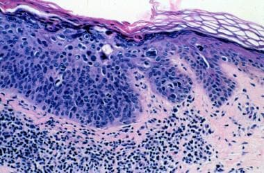Histologic features of actinic keratosis in an ind