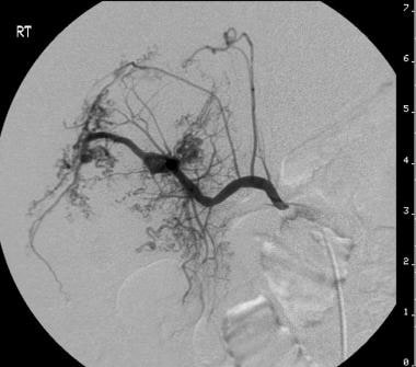 Pre-embolization angiography of the patient with a