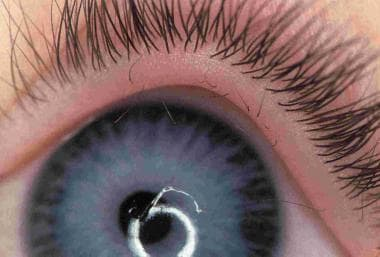 Pink Eye Meds For Dogs