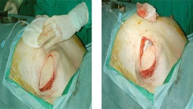 Latissimus dorsi breast reconstruction; implant pl