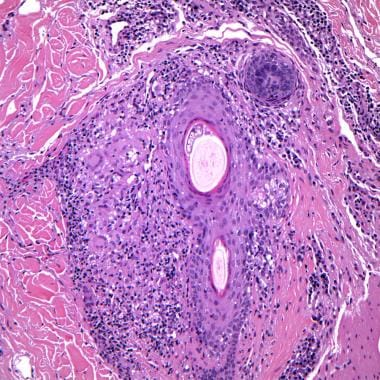 A dense perifollicular infiltrate is composed of l