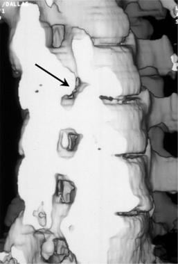 Oblique 3-dimensional shaded surface display CT re