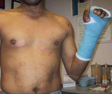 Patient with erythema nodosum leprosum type 2 reac