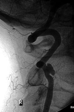 Selective angiogram of a right vertebral artery ps
