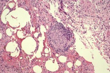 A histopathology slide (hematosin and eosin stain)