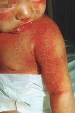 Staphylococcal scalded skin syndrome. Photograph b