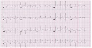 ECGs from a child with a secundum atrial septal de