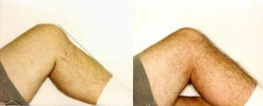 The posterior tibial sag sign. The photo on the le