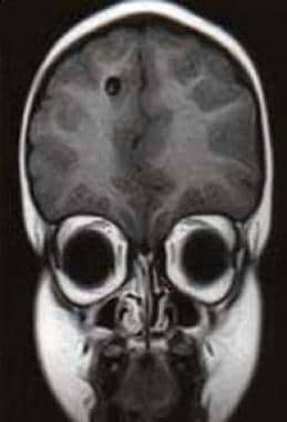 Case 1: Coronal image MRI of a 6-year-old boy from